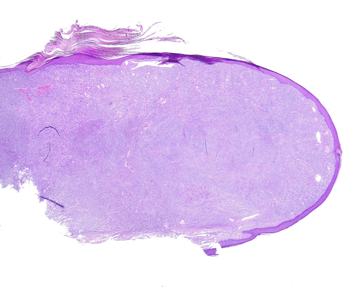 Spindle cell tumor