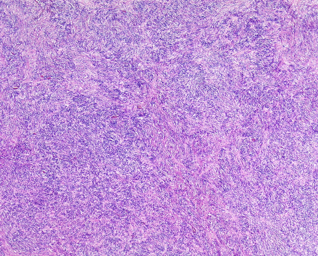 Fibrous histiocytoma-like pattern