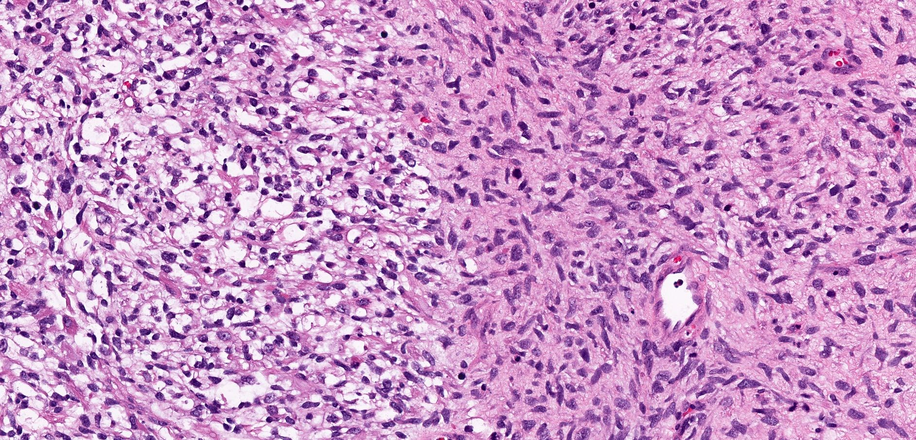 Dedifferentiated solitary fibrous tumor