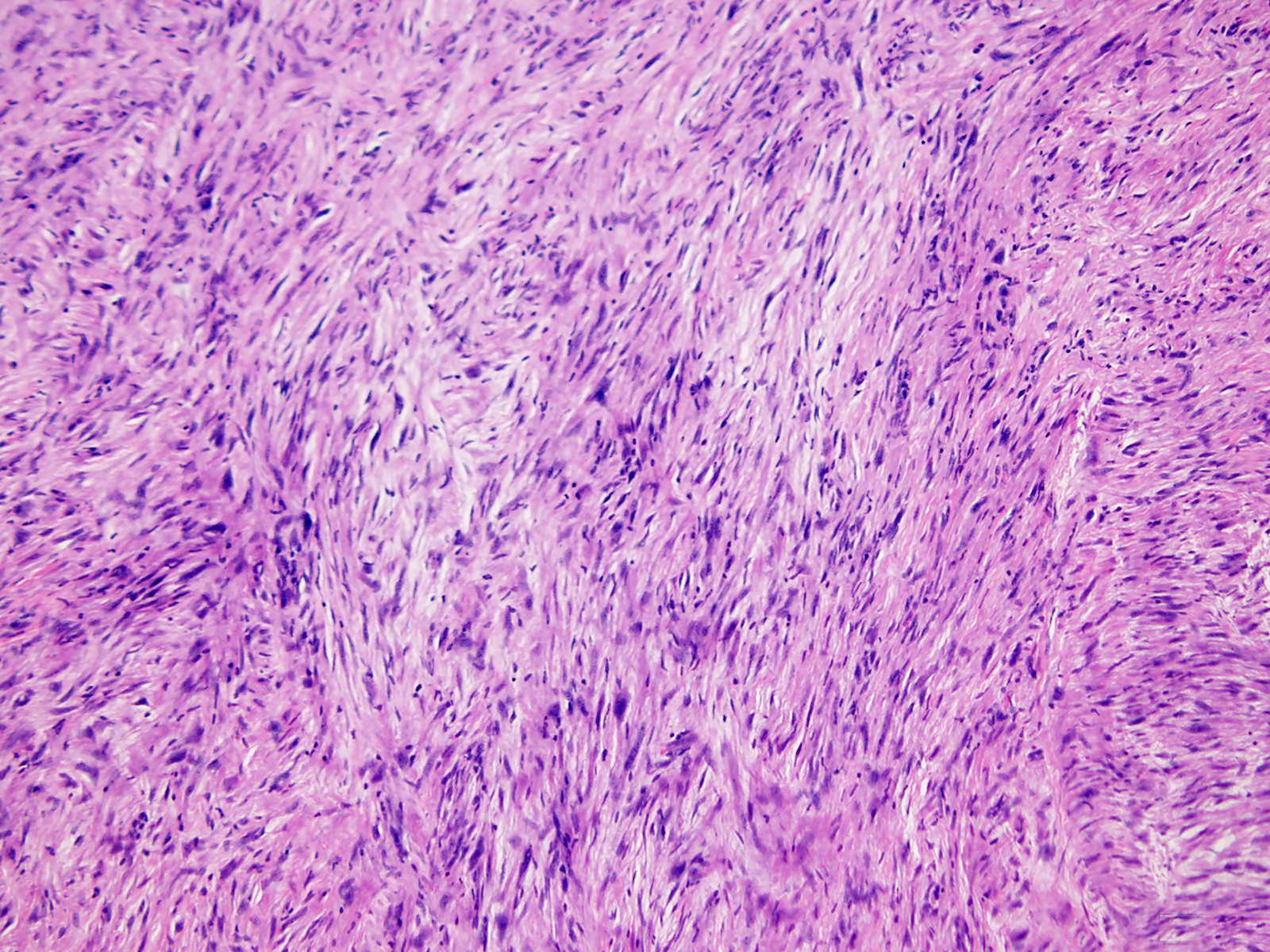 Superficial CD34+ fibroblastic tumor