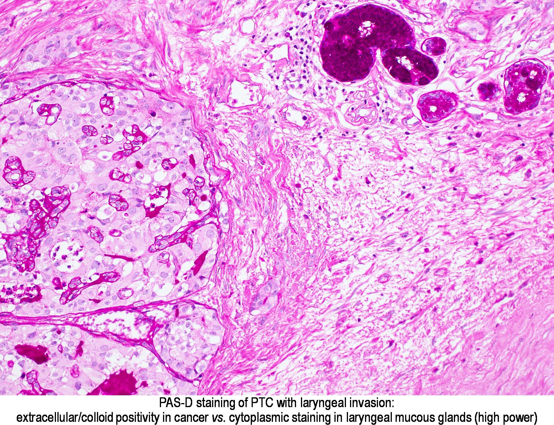 Image result for PAS staining