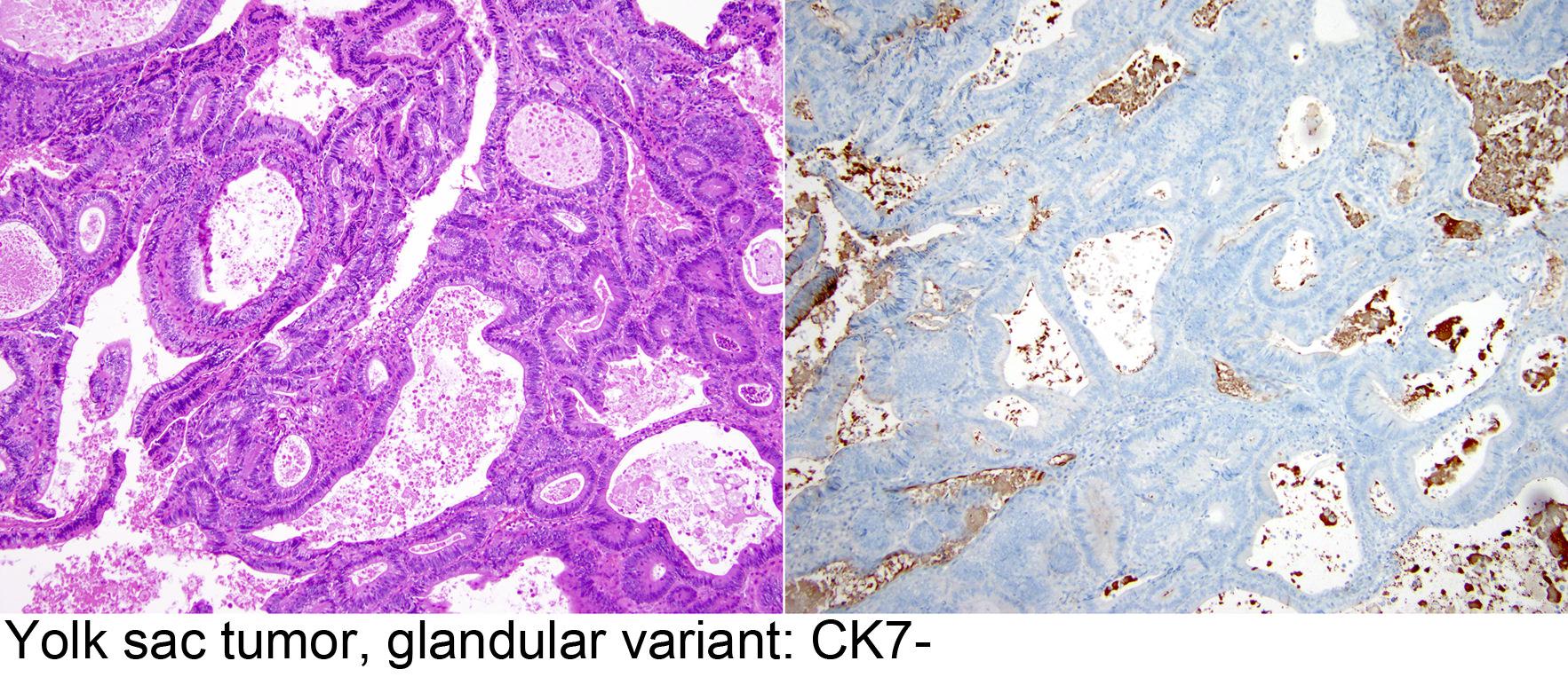 prostate adenocarcinoma ck7 positive)