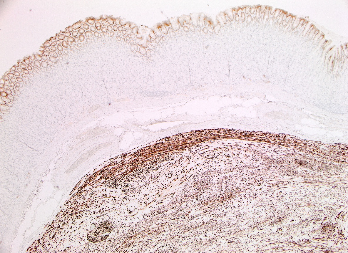Diffuse staining