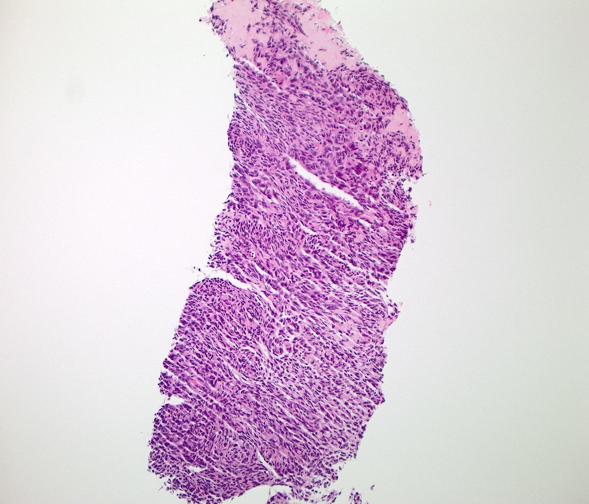 H&E biopsy
