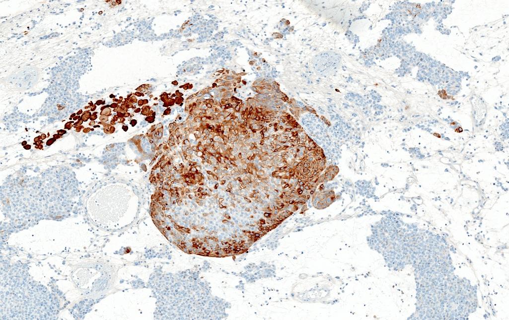 MCPyV negative MCC (combined MCC, primary tumor)