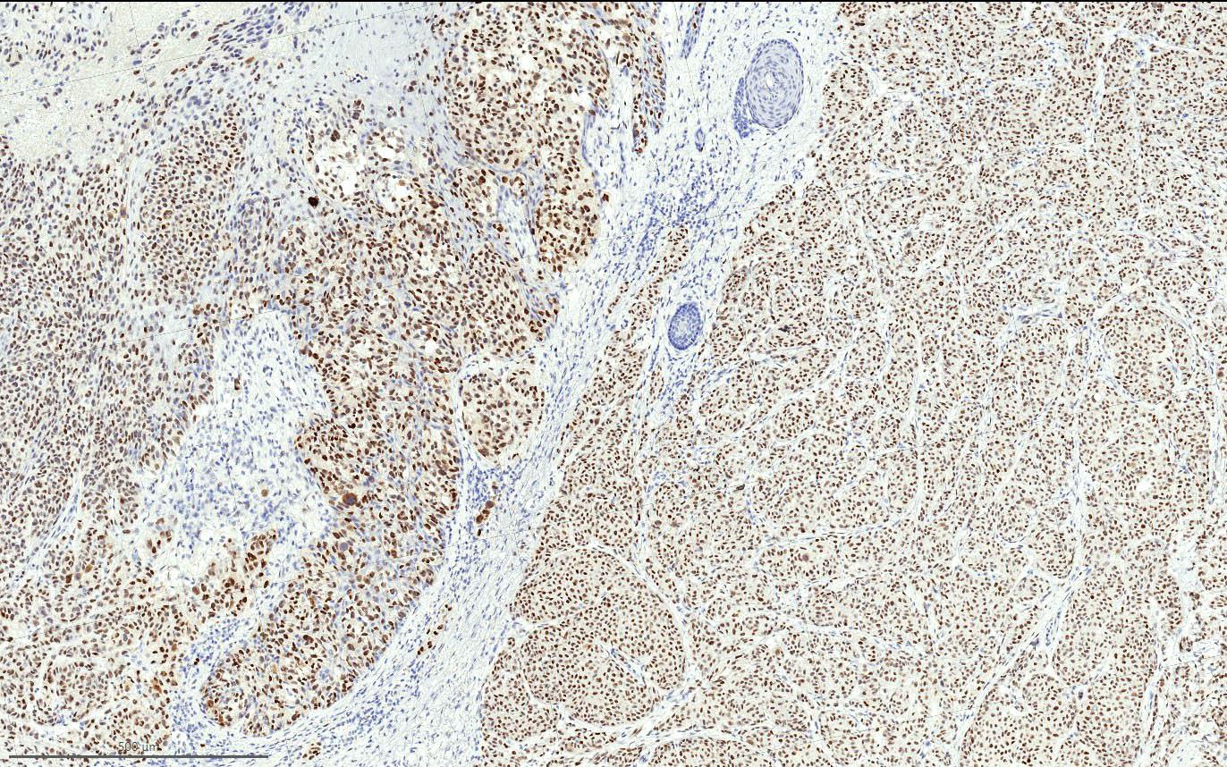 PRAME in primary cutaneous melanoma