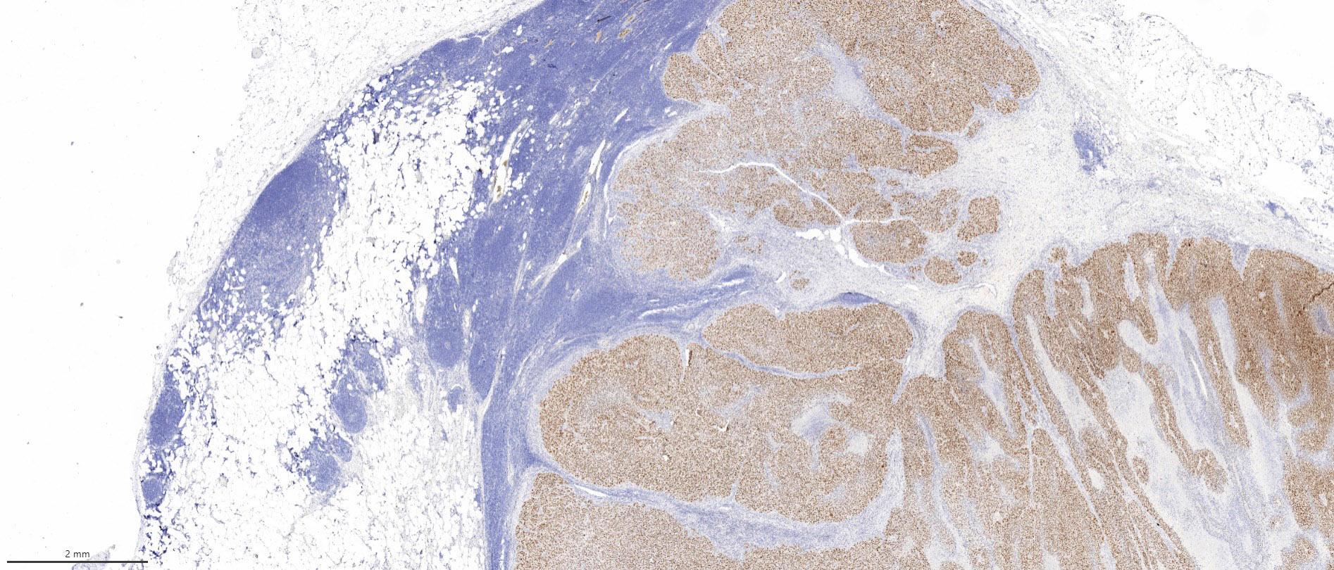 PRAME positive melanoma metastasis