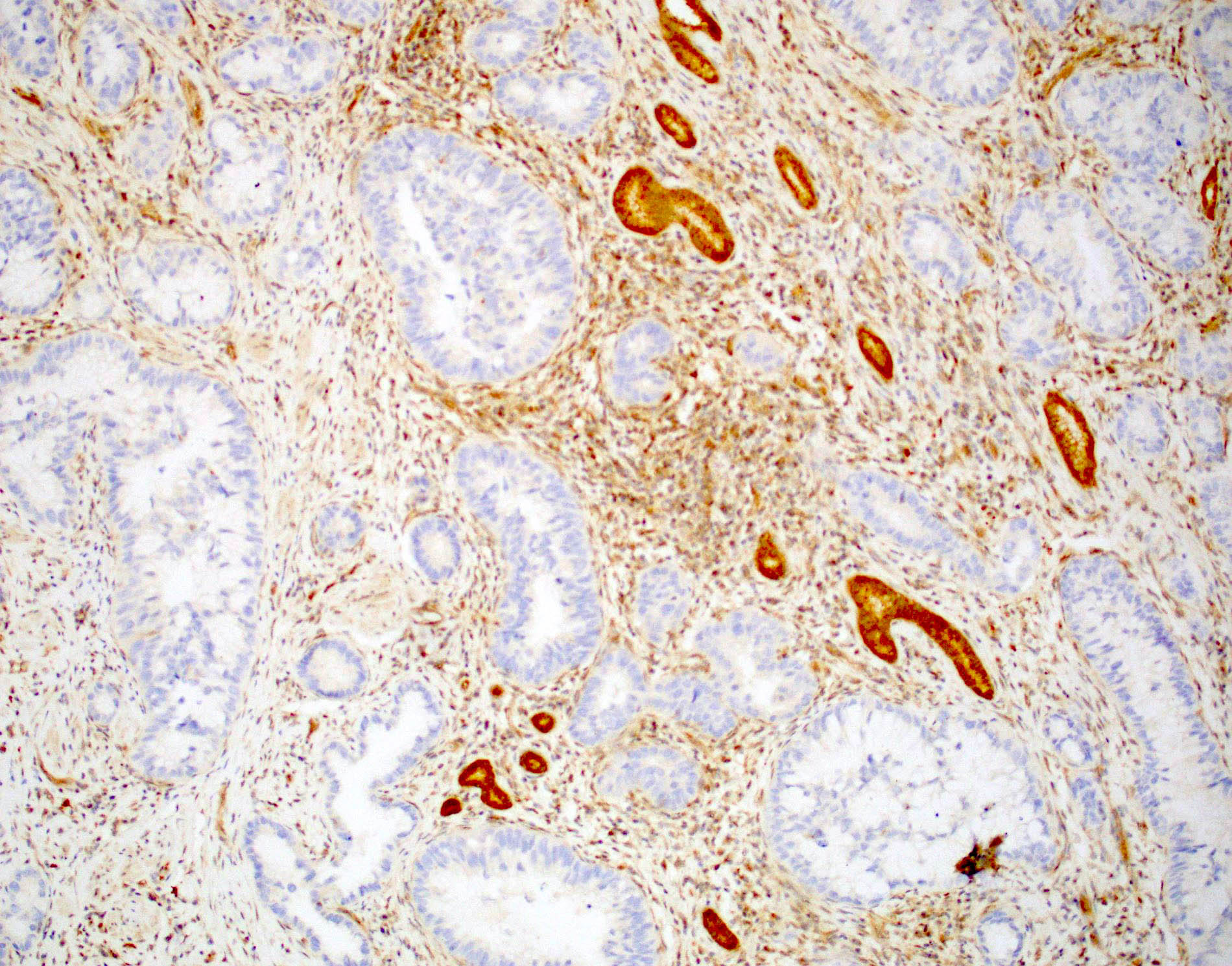 Extrahepatic cholangiocarcinoma