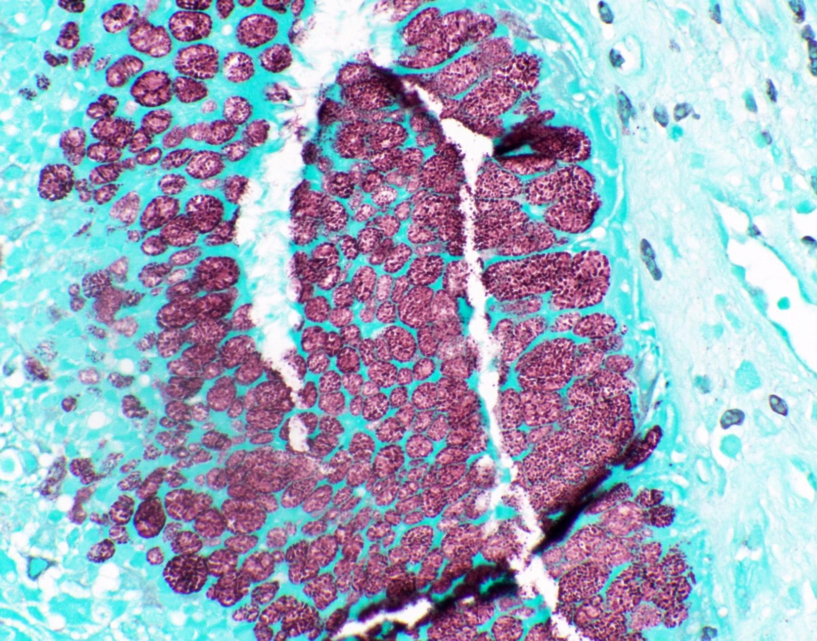 Cytoplasmic mucin