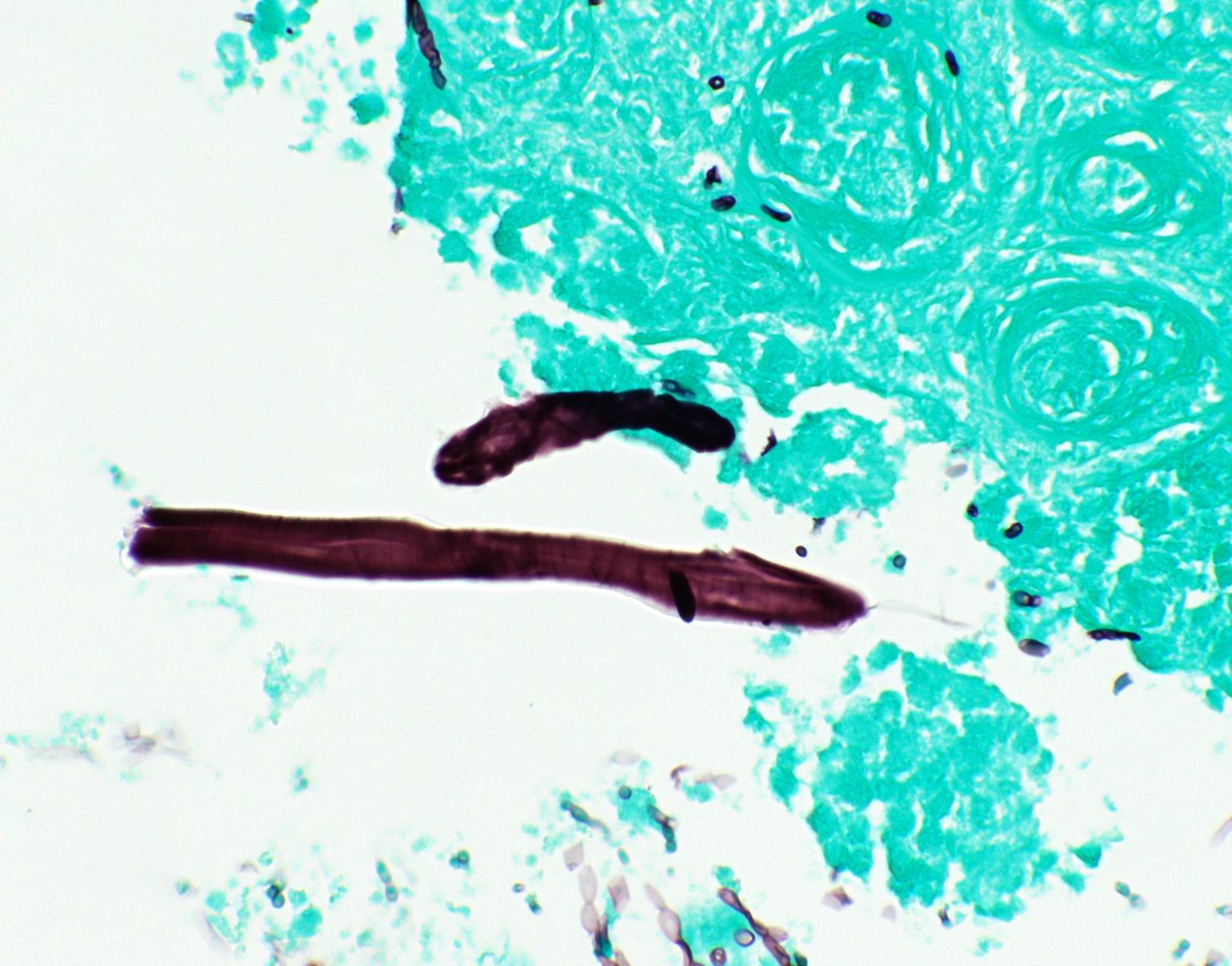 Foreign bodies near fungus