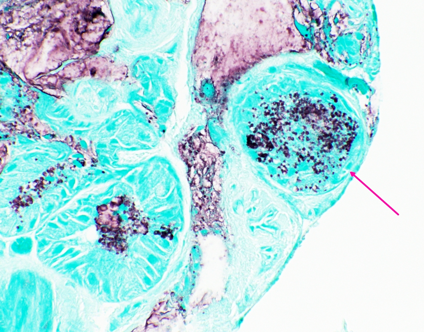 Cytoplasmic mucin, peribronchial glands