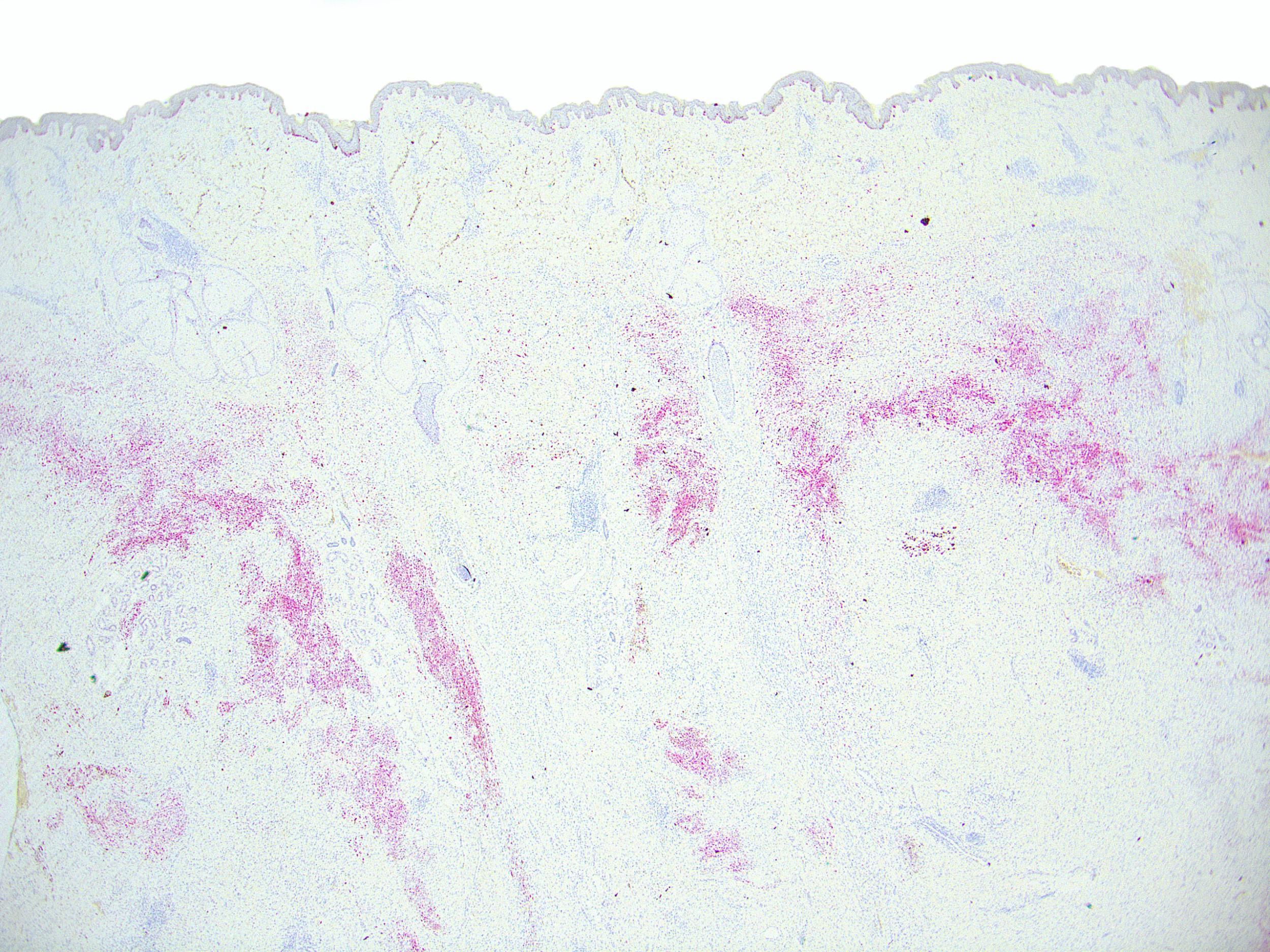 Neurocristic hamartoma MelanA