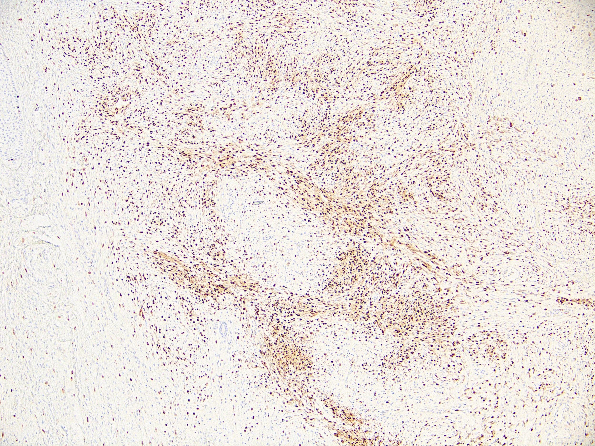 Neurocristic hamartoma MITF scanning