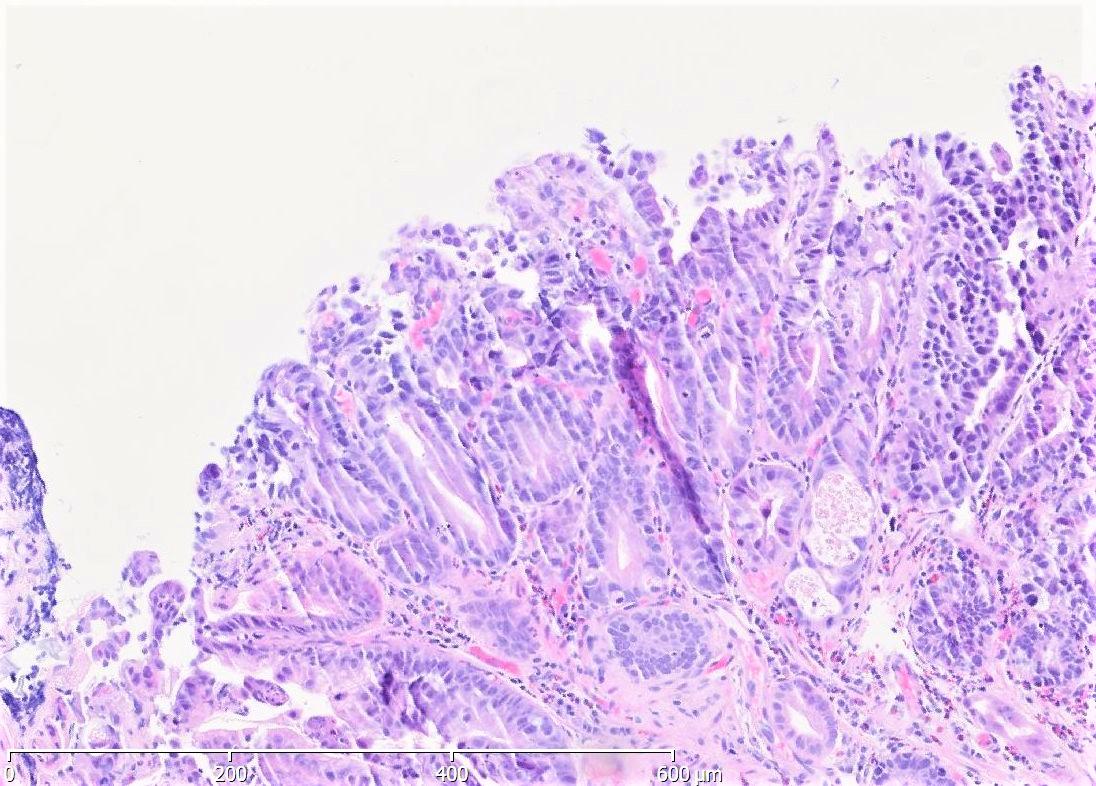 High grade intraepithelial neoplasia