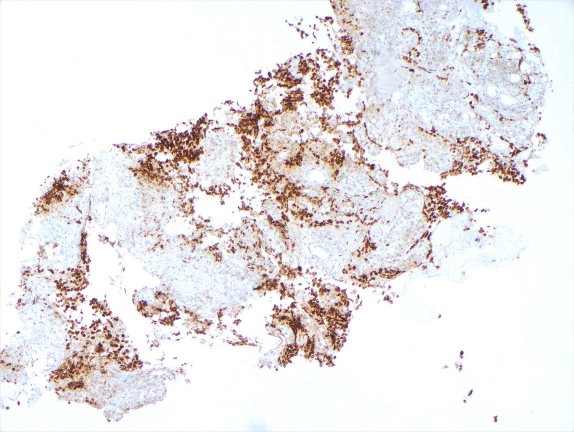 Metastatic ovarian serous carcinoma
