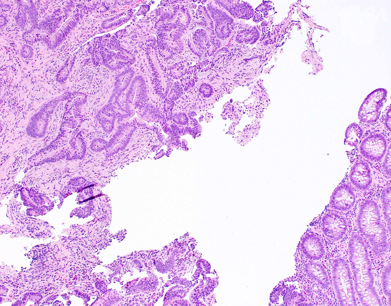 Colon adenocarcinoma, moderately differentiated