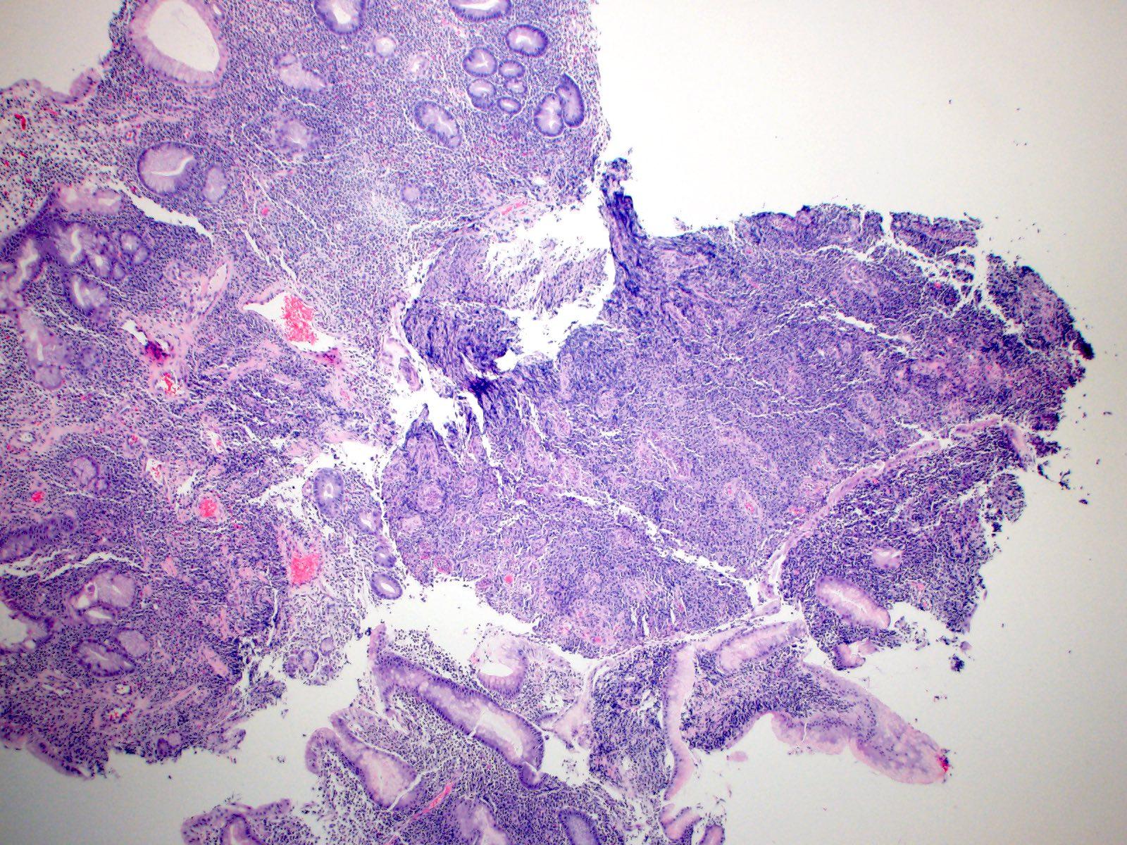 Dense lymphoplasmacytic infiltrate