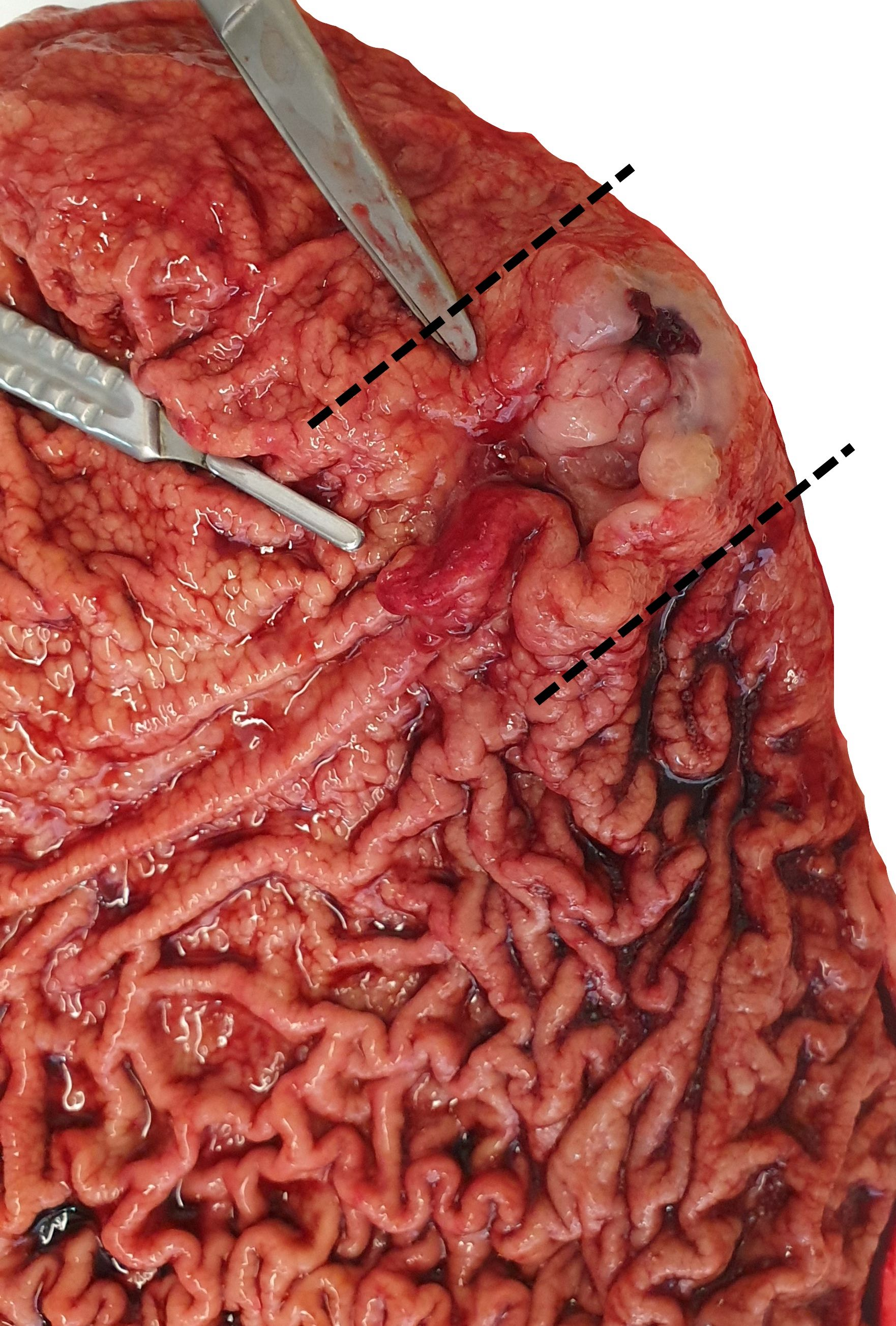 Mass in the gastric body
