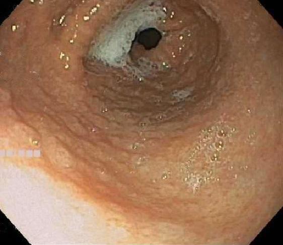 Nodular mucosa