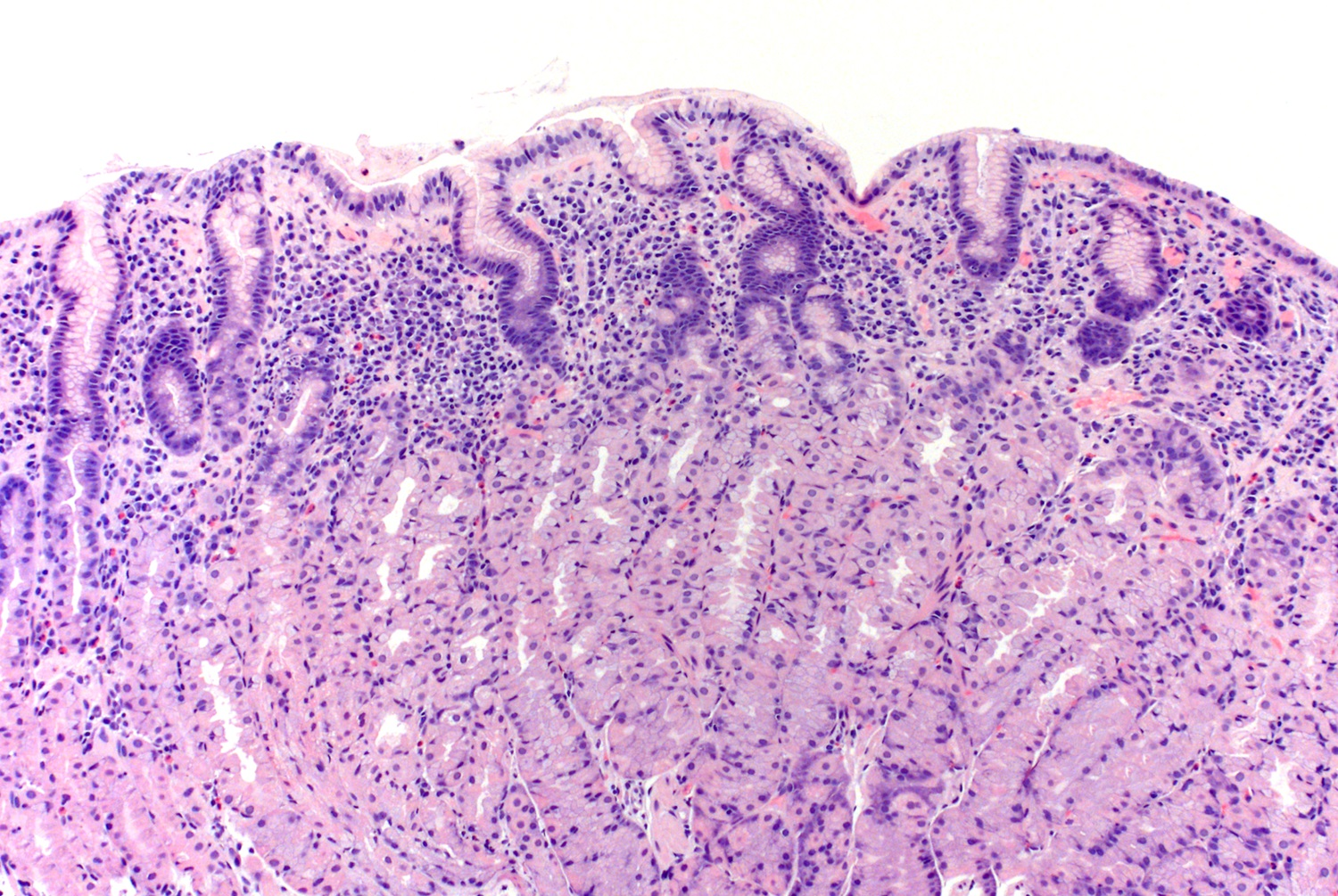 Histology of <i>H. pylori</i> stomach body