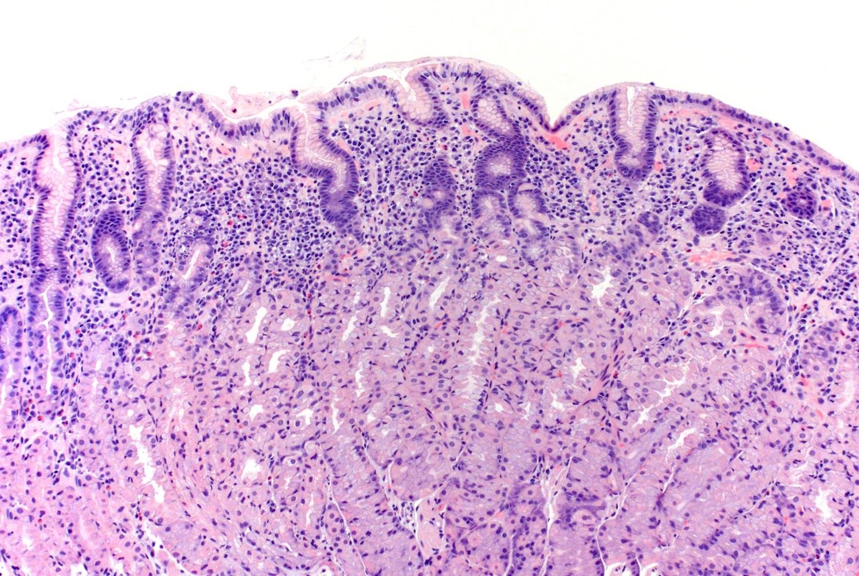 Histology of <i>H. pylori</i> stomach body