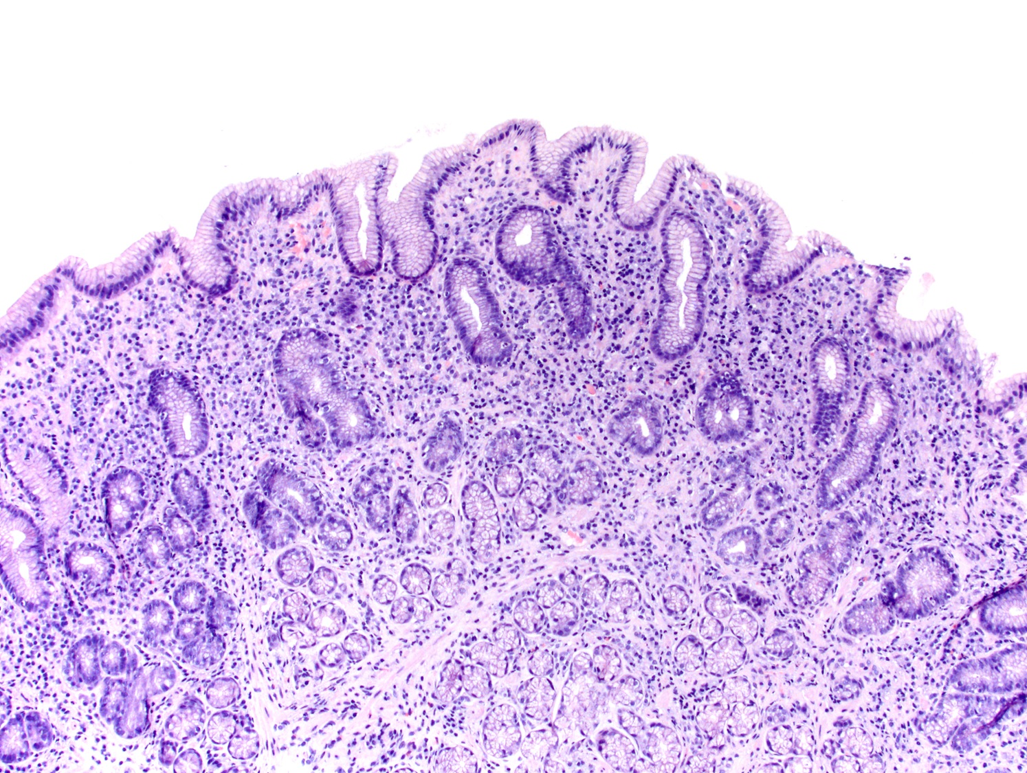 Histology of H. pylori stomach antrum