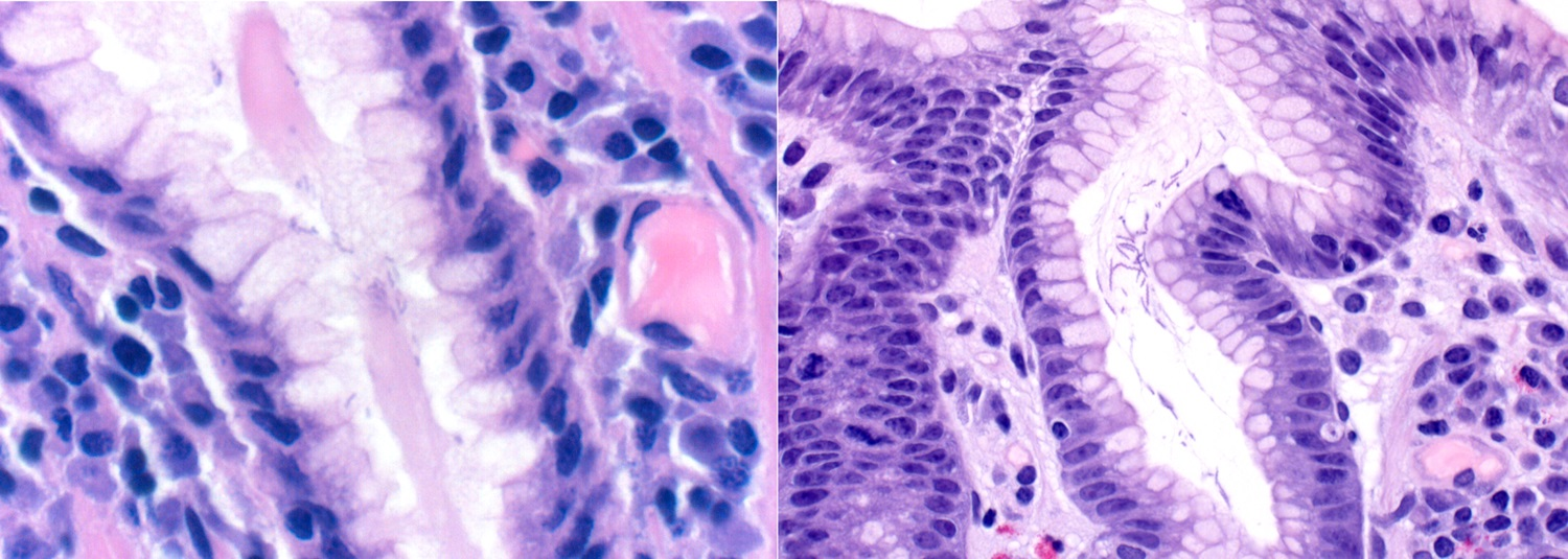 Histology of <i>H. pylori</i> (left) versus <i>H. heilmannii</i> (right)