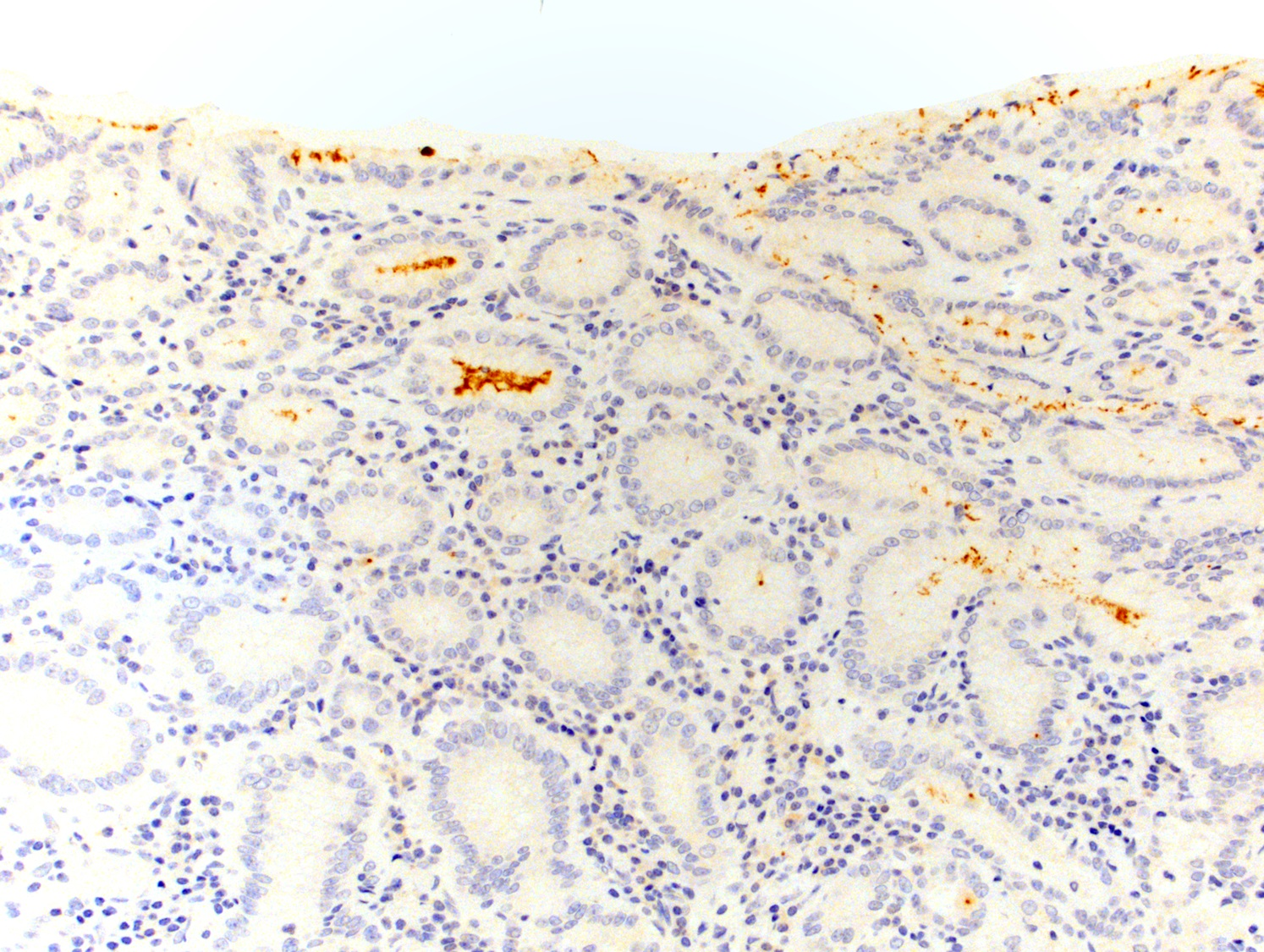 Immunostain for <i>H. pylori</i>