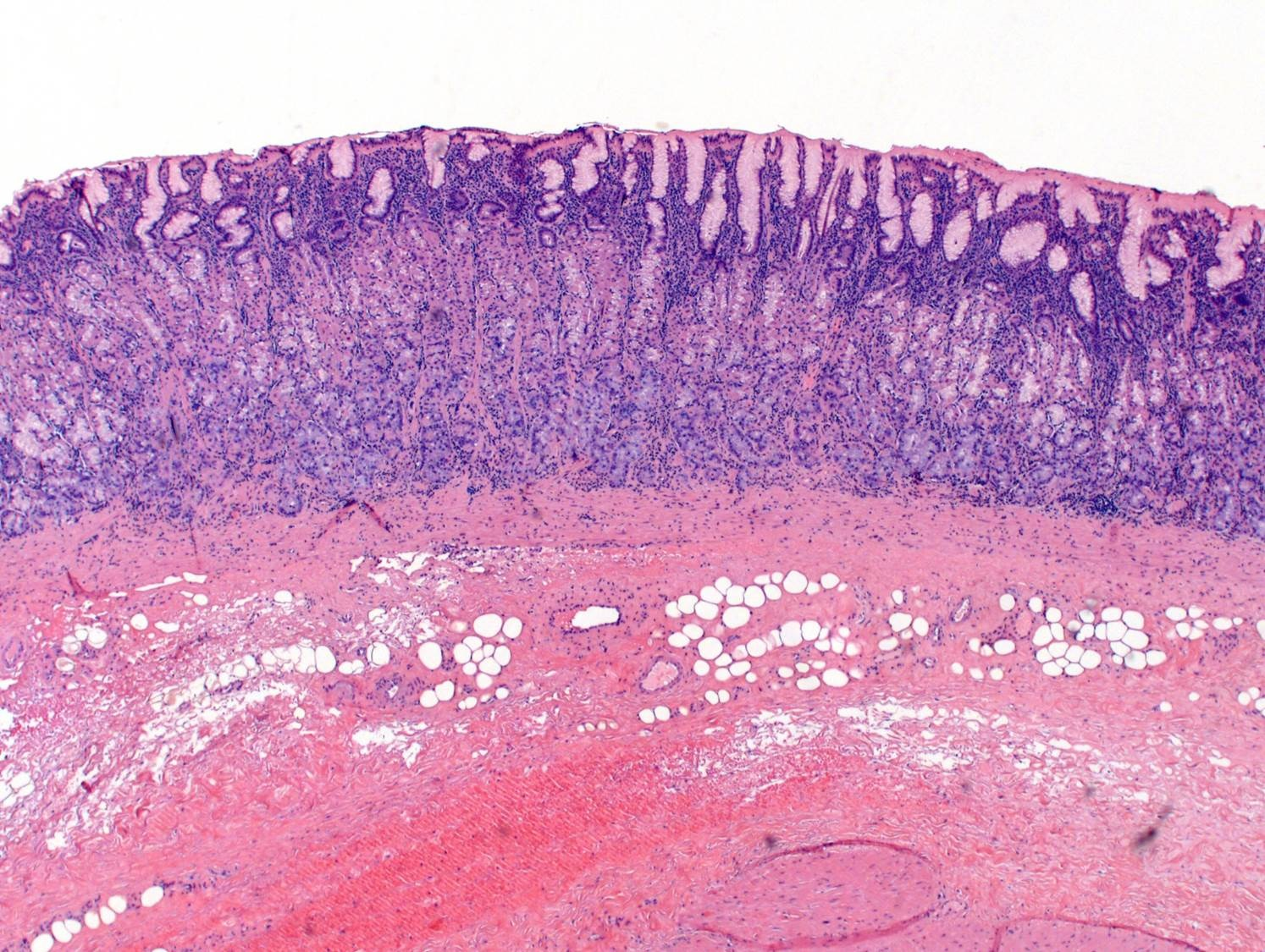 Stomach body <i>H. pylori</i> gastritis
