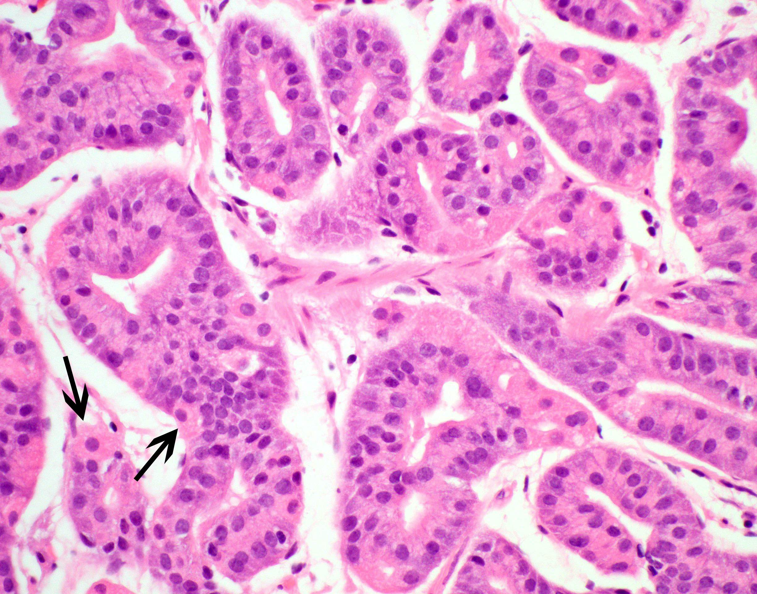 Predominantly chief cell differentiation