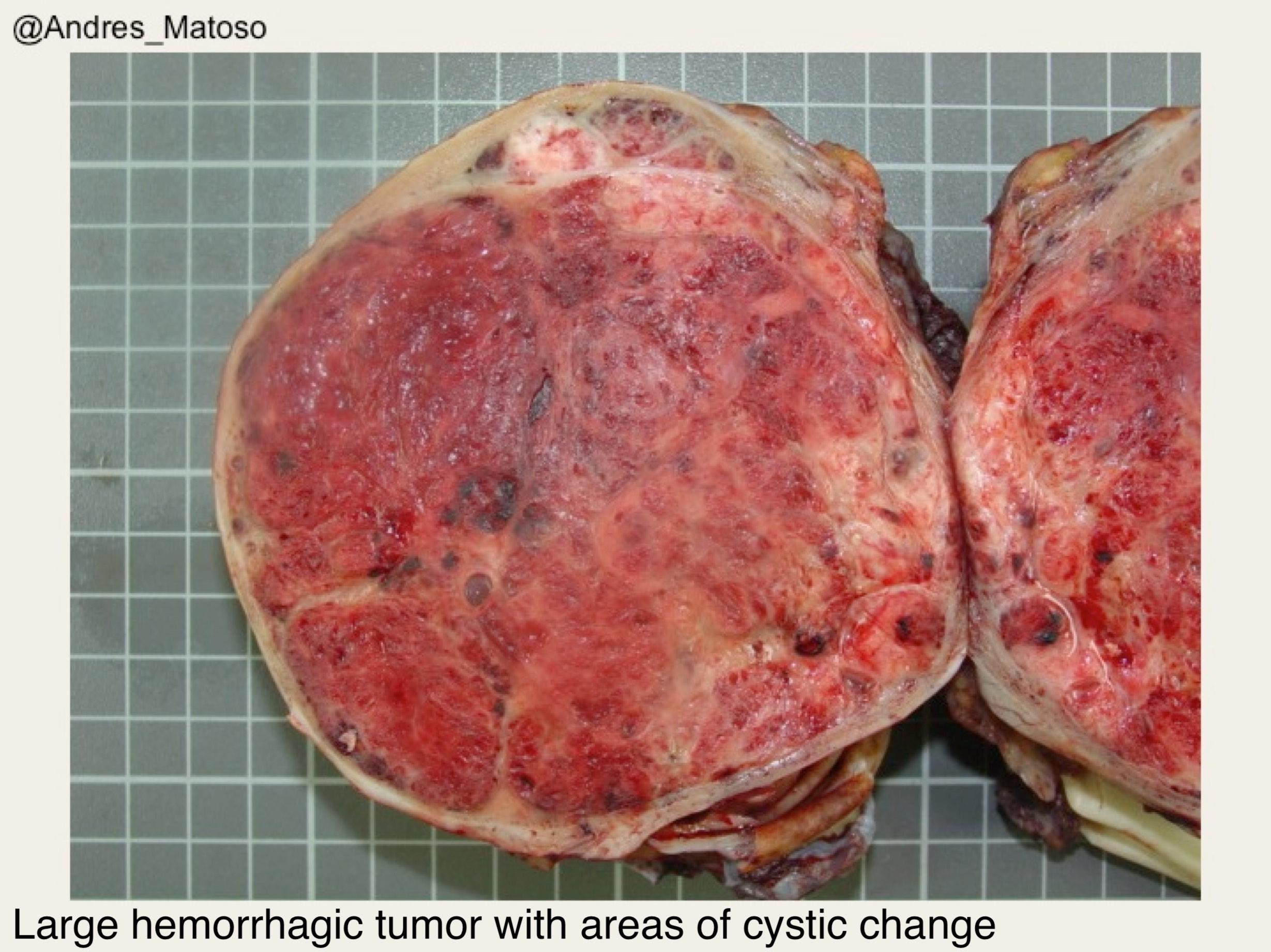 Pathology Outlines Choriocarcinoma