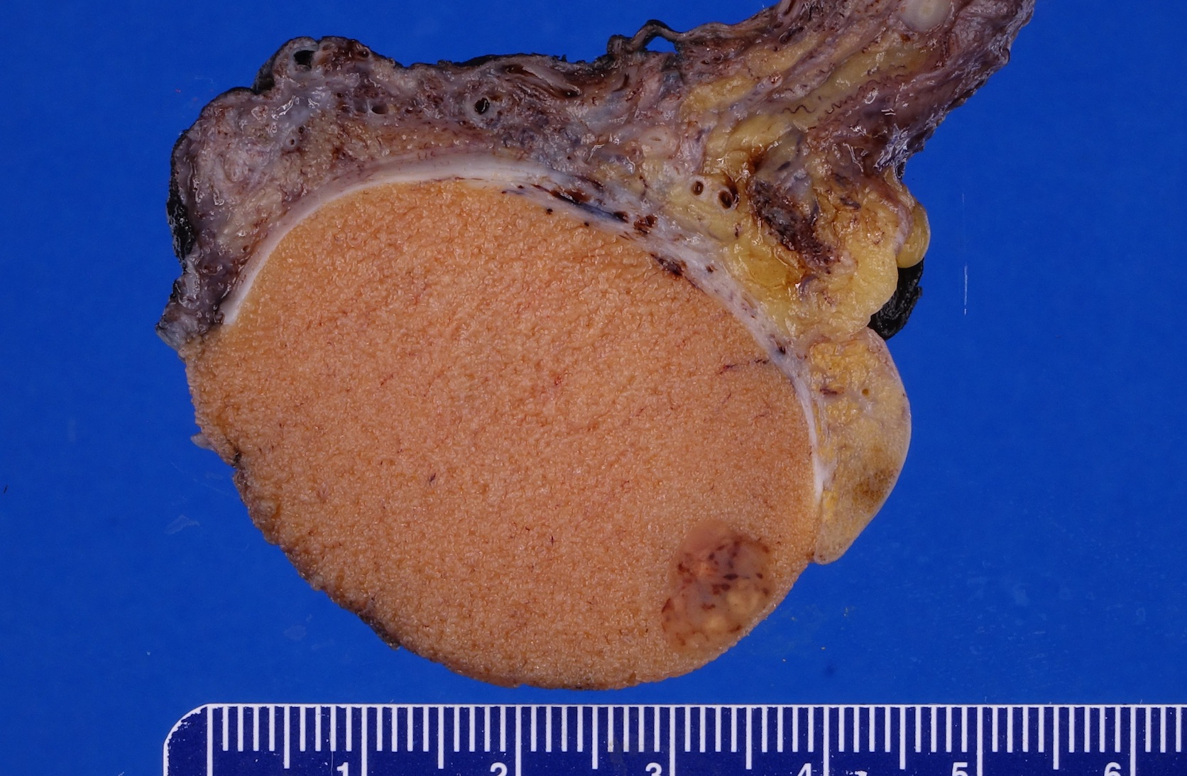 Small tumor