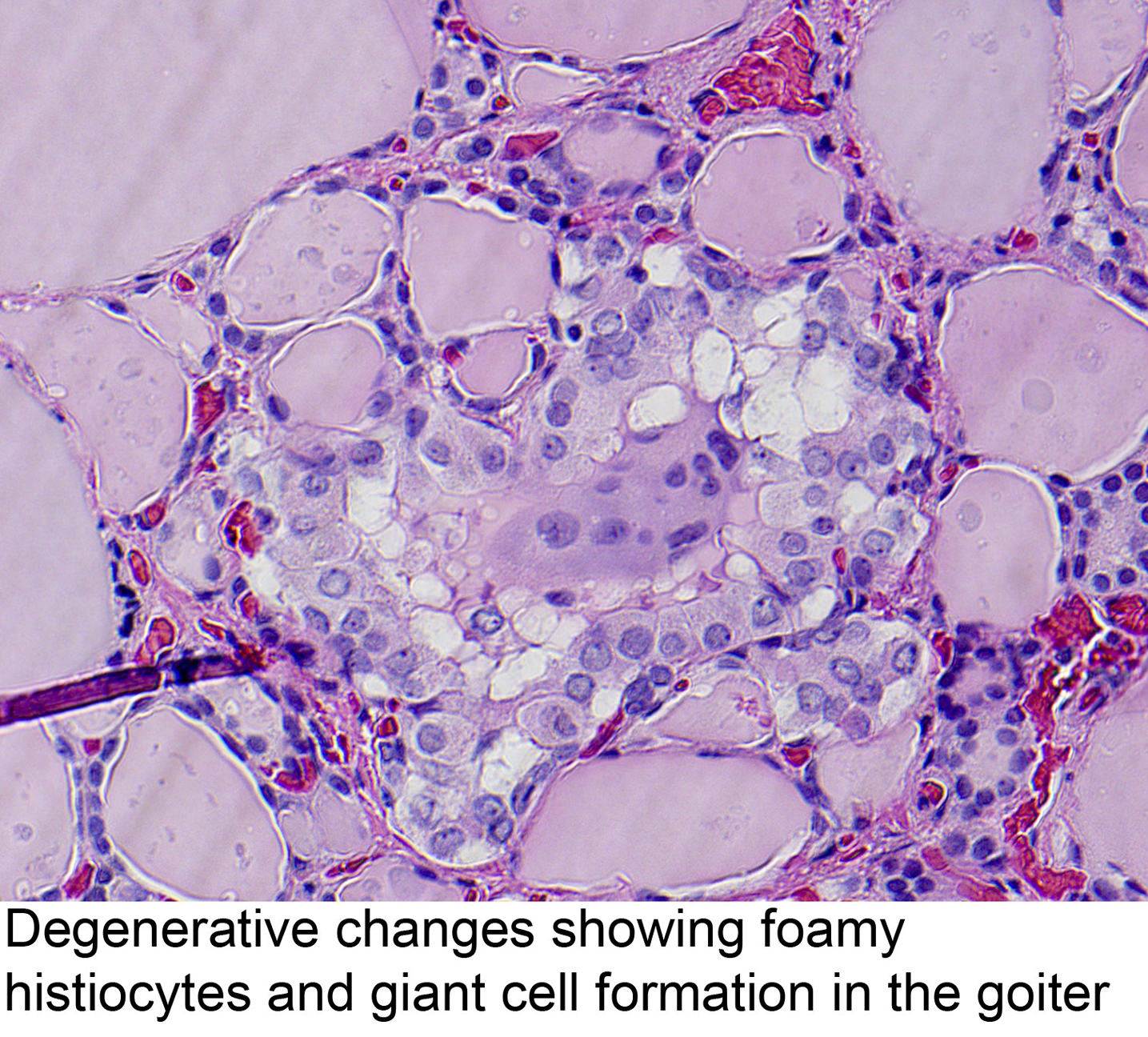 pathology outlines simple goiter and nontoxic