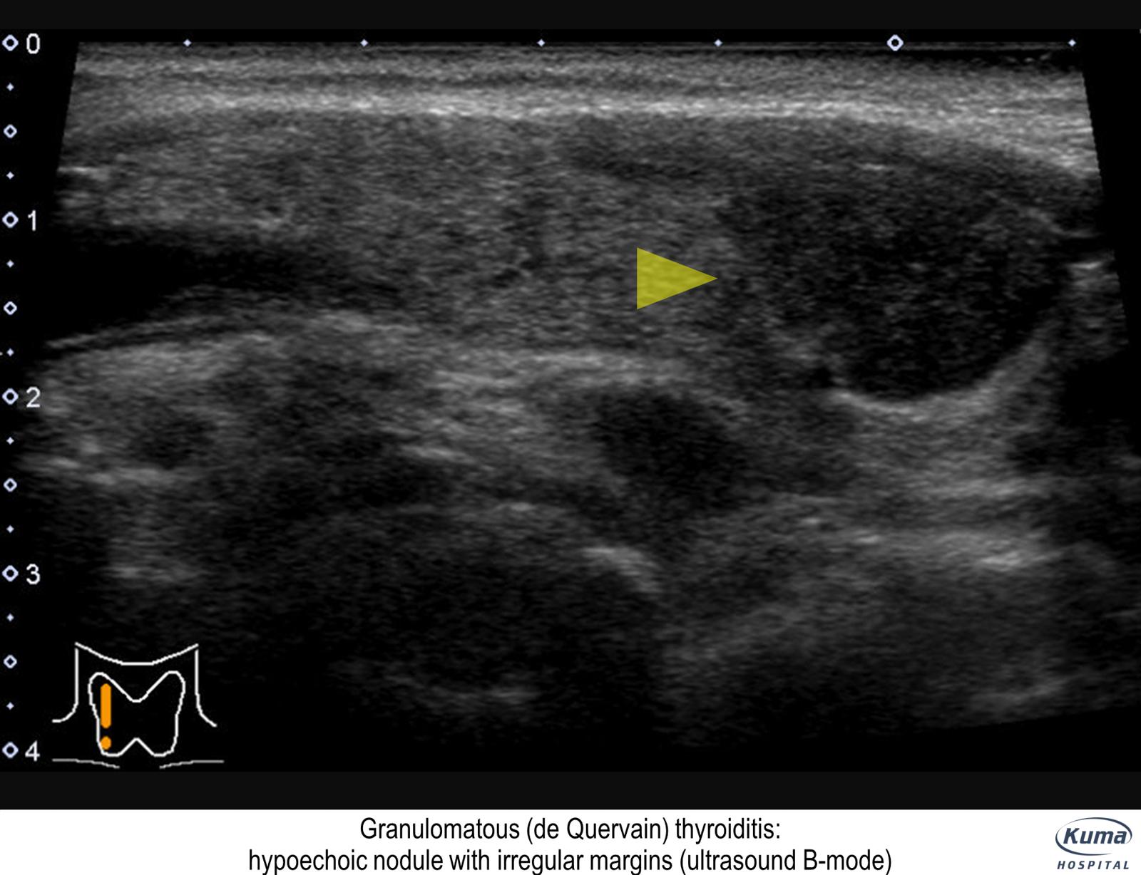 ultrasound findings subacute thyroiditis