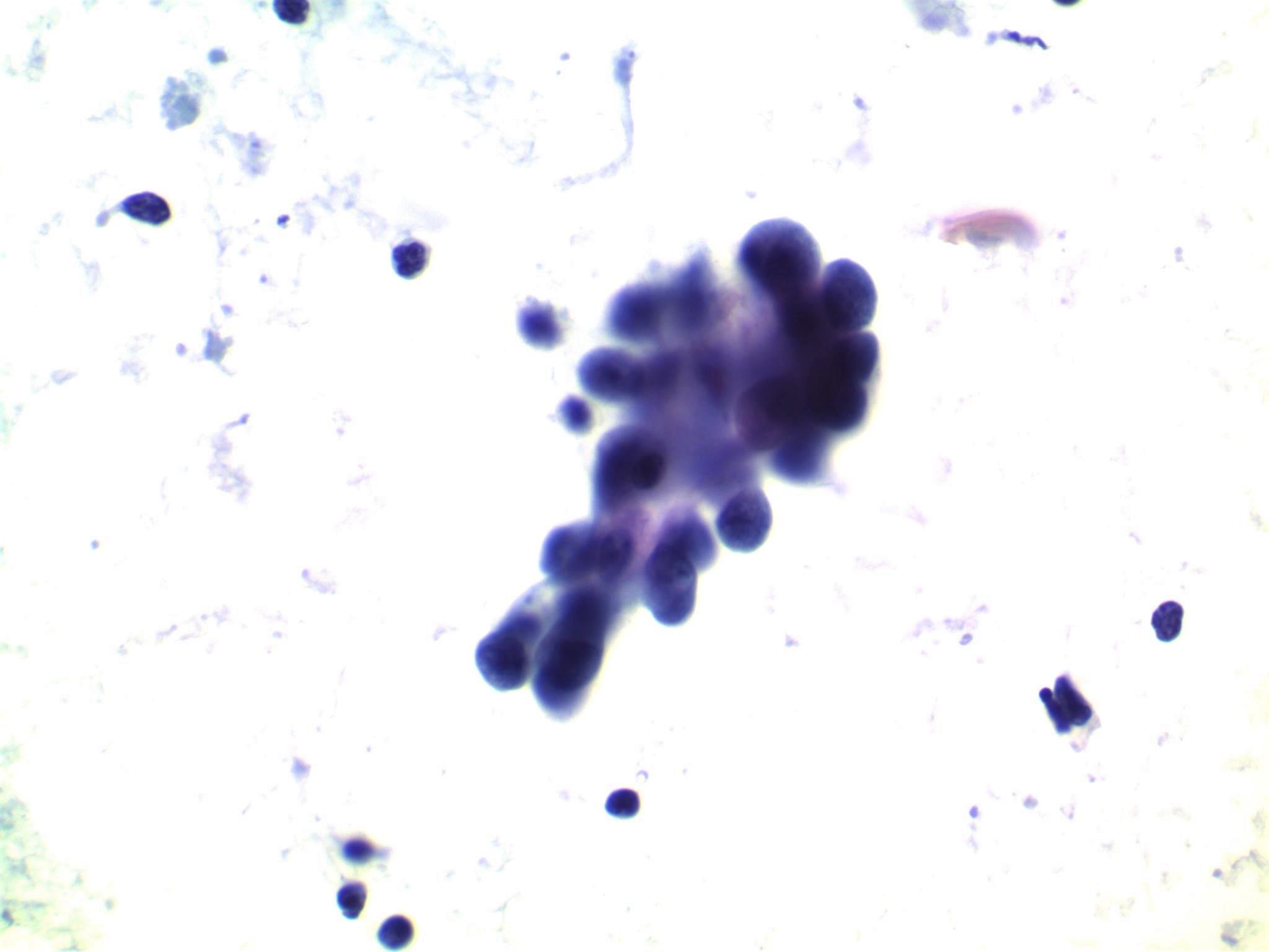 Protruding hobnail cells