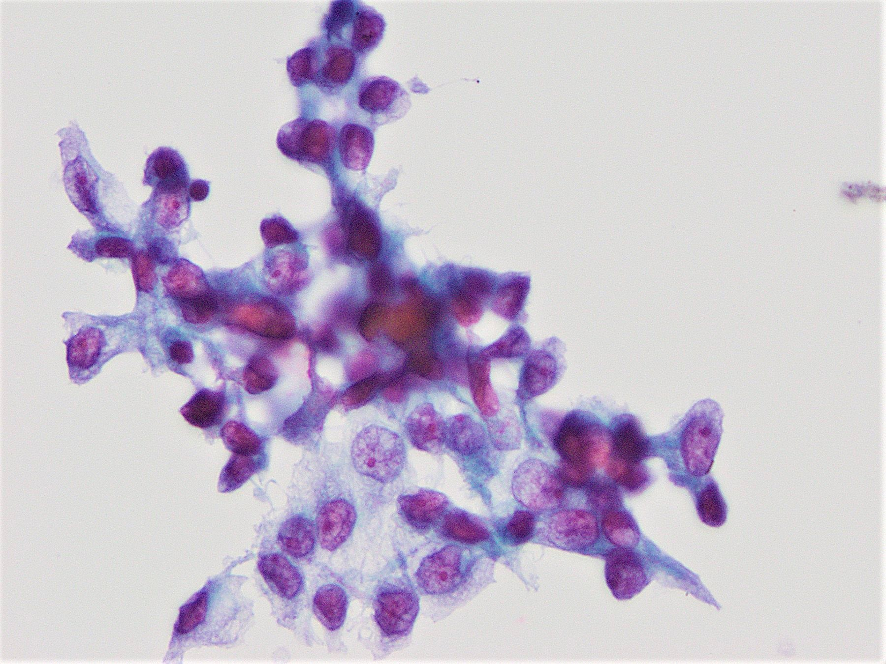 Cytological and architectural atypia