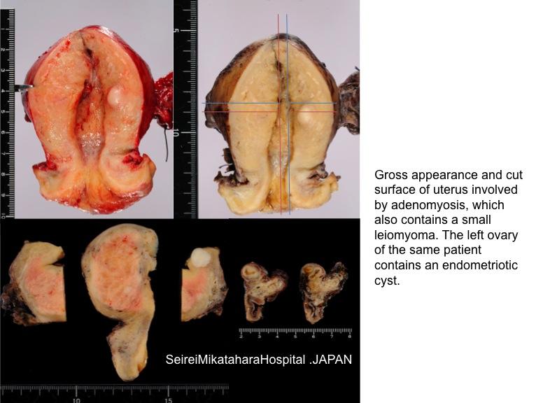 Pathology Outlines Adenomyosis