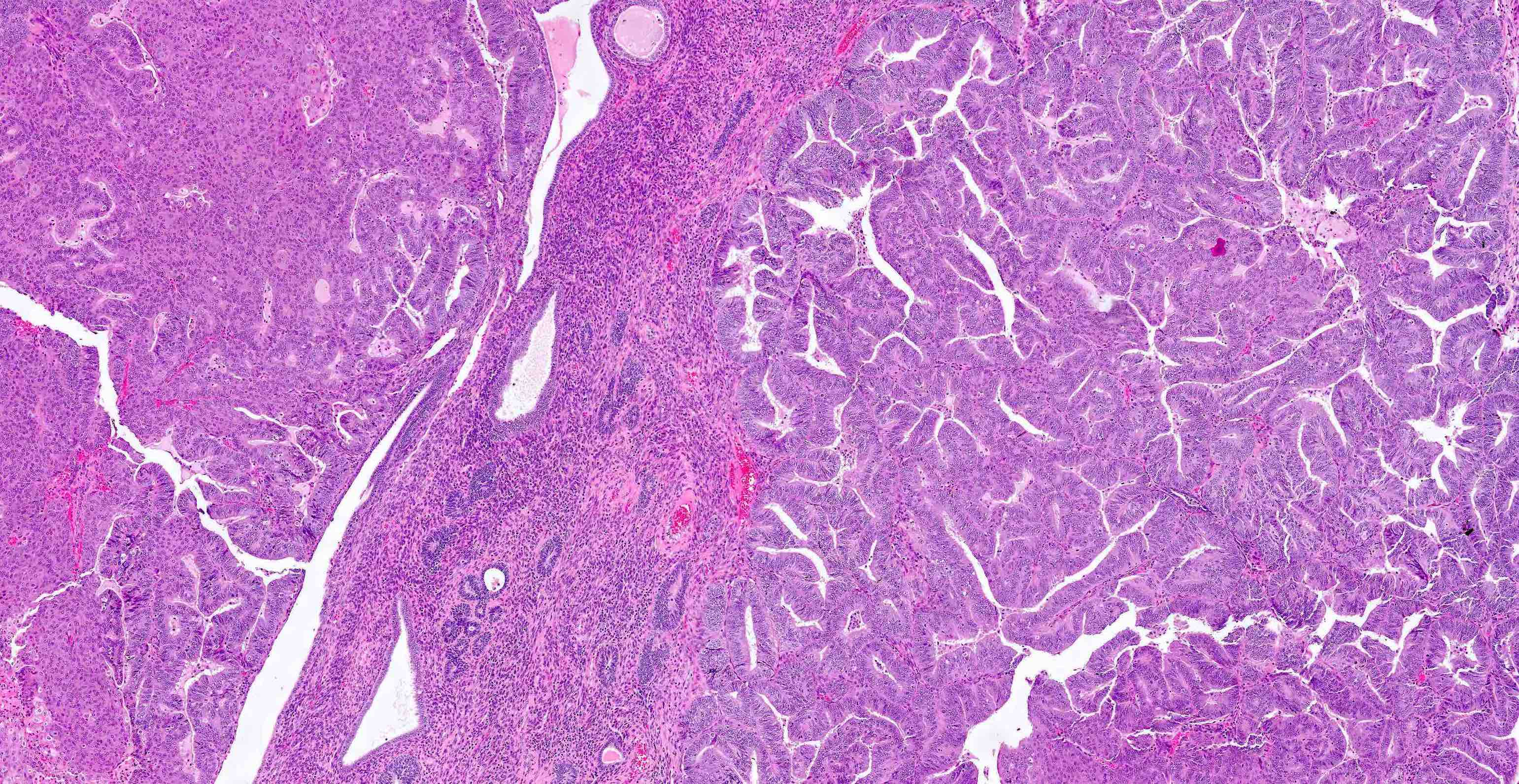 Squamous metaplasia