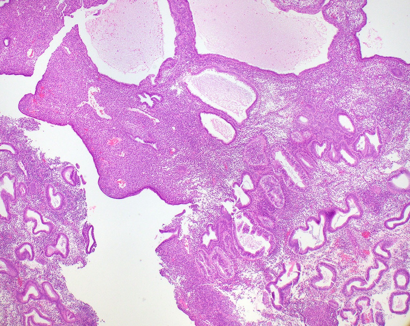 Secretory endometrium, day 26