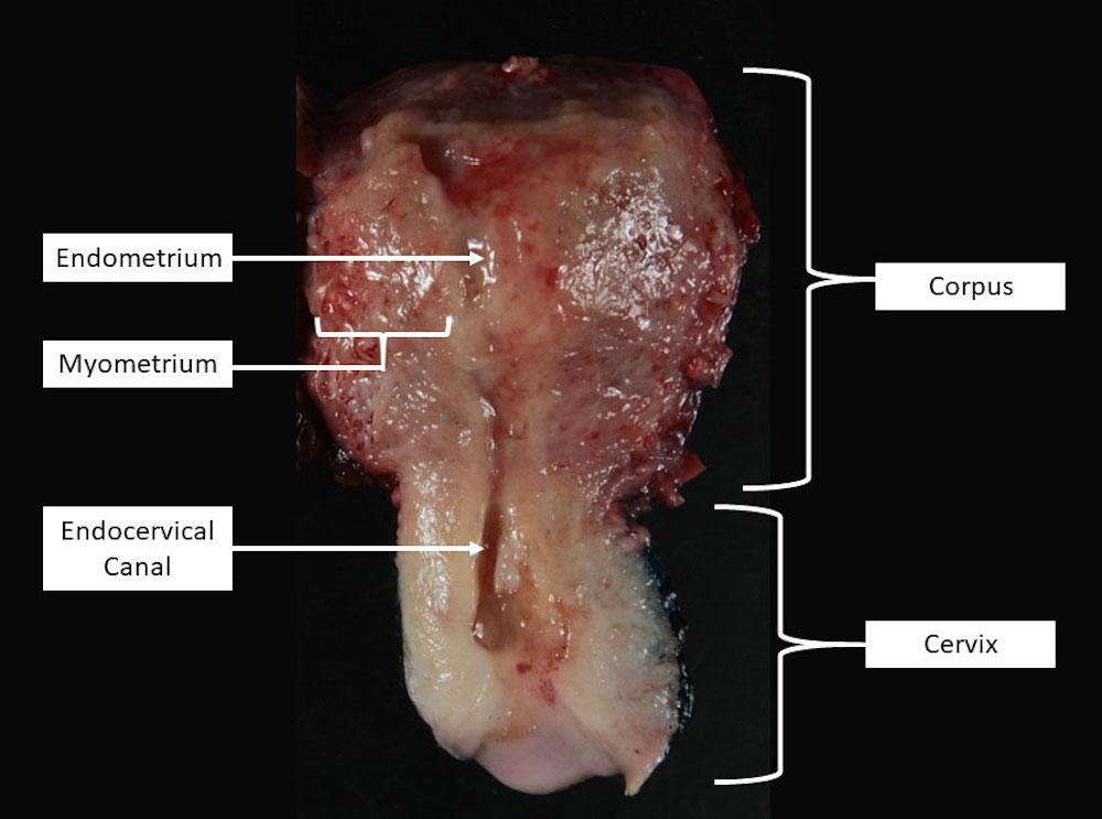 Bivalved uterus