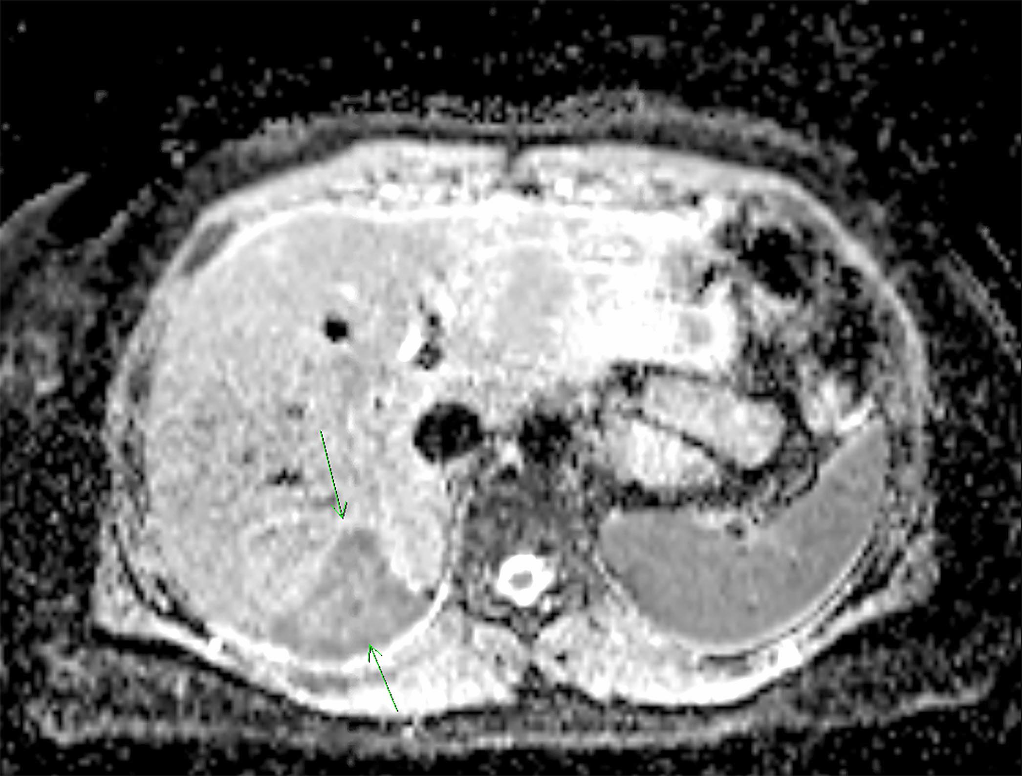 MRI of retroperitoneal mass