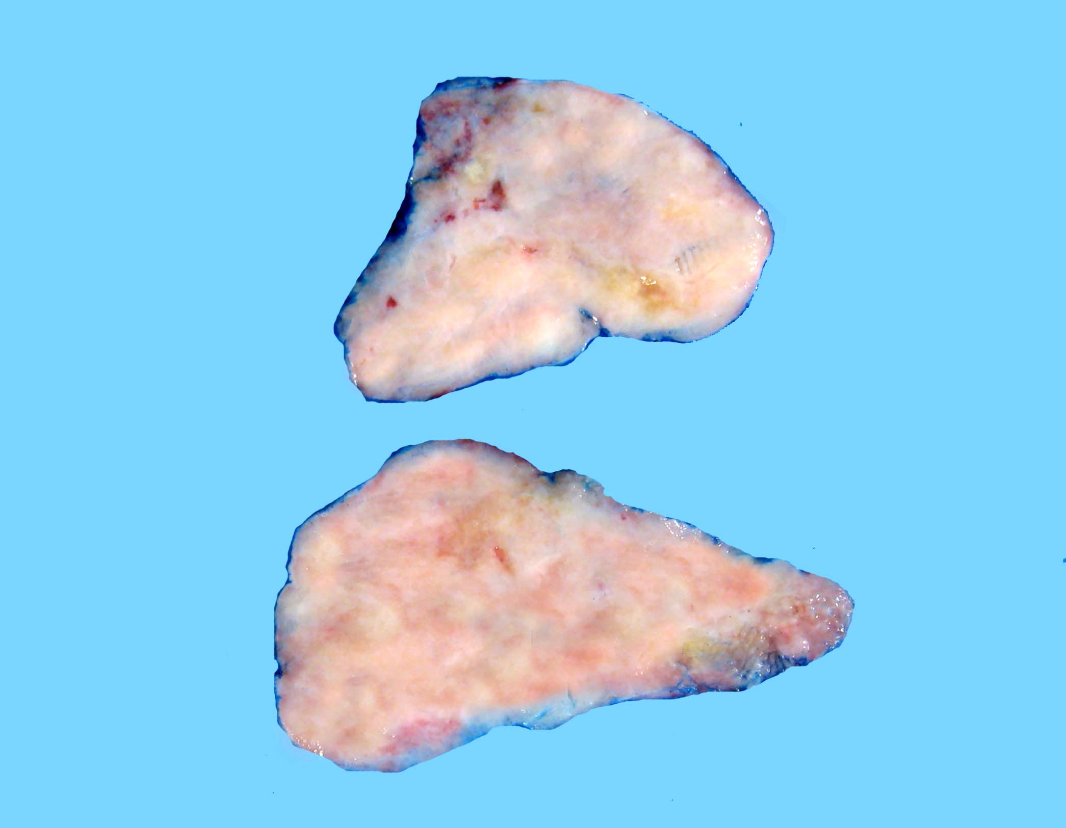 Fibrous cut surface