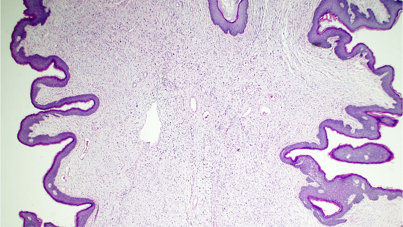 Hypocellular stromal form