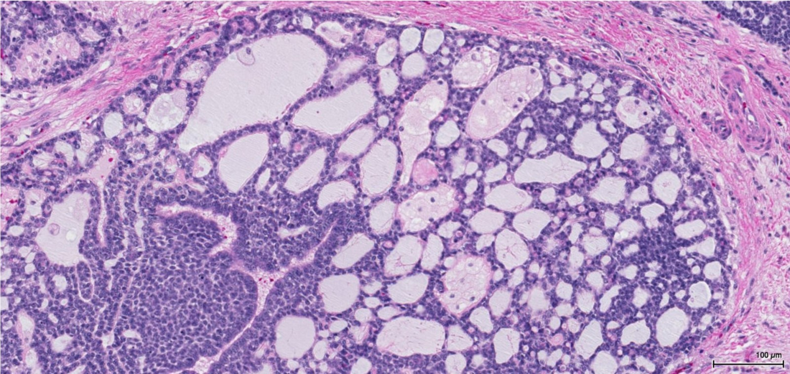 Glandular pattern