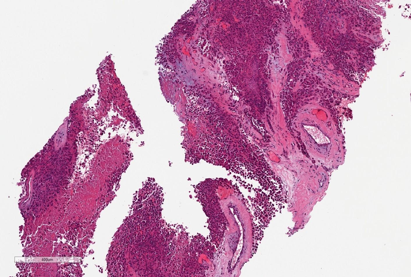 Core biopsy