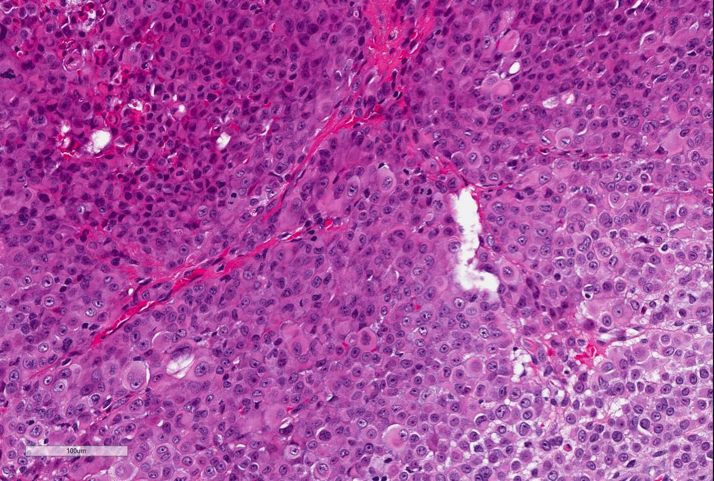 Epithelioid cells