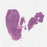 Medulloblastoma, desmoplastic / nodular histologic subtype