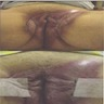 Extensive perianal Paget disease, perineum
