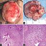 Orbital tumor resection specimen