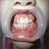 Lesion in mandible